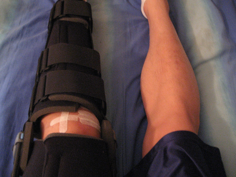My leg in the intense leg brace
